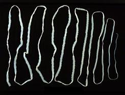 a férgek a féreg után mennek a schistosomiasis tünetei