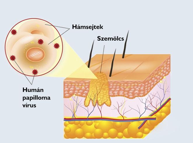 papilloma torokműtét nhs humán papillomavírus vakcina