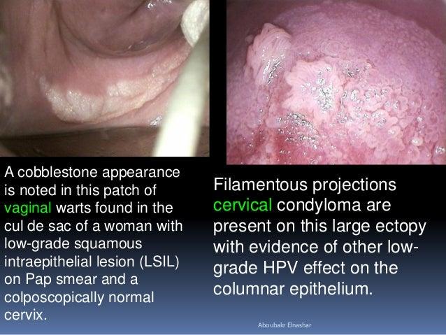 papilloma condyloma kezelésének módszerei mennyi enterobiosis van a klinikán
