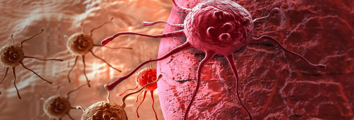 Vérszegénység is veszélyezteti a daganatos beteget | Rákgyógyítás
