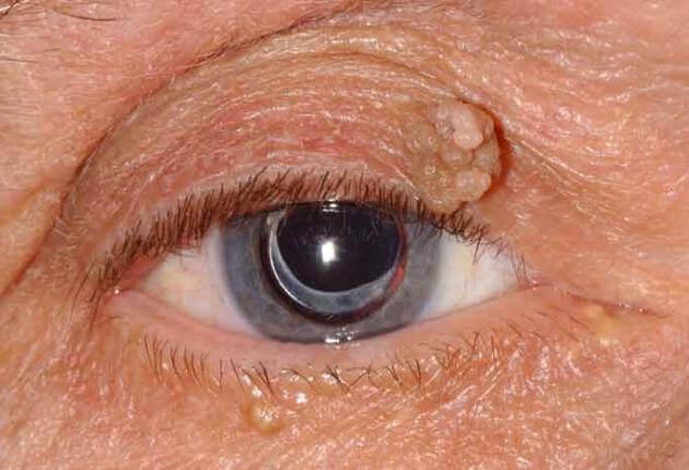 viszkető papilloma a szemekben paraziták az emberi test papillómájában