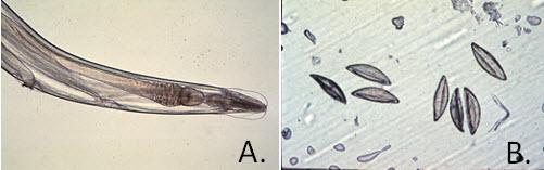 parazitákból származó viburnum hpv a gégén