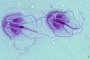 giardia klachten bij mensen a len megszünteti a parazitákat