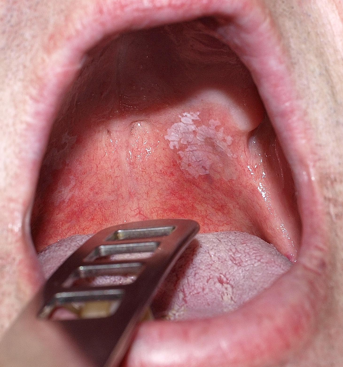 szemölcsöket mutat a nyelv alatt végbélrák természetes kezelése