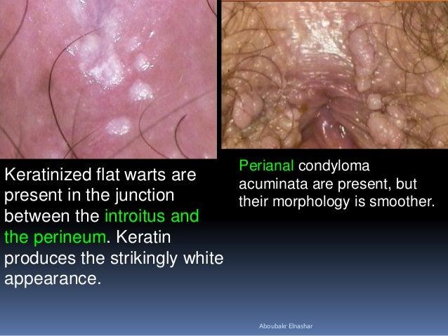 papilloma condyloma kezelésének módszerei viermi salau