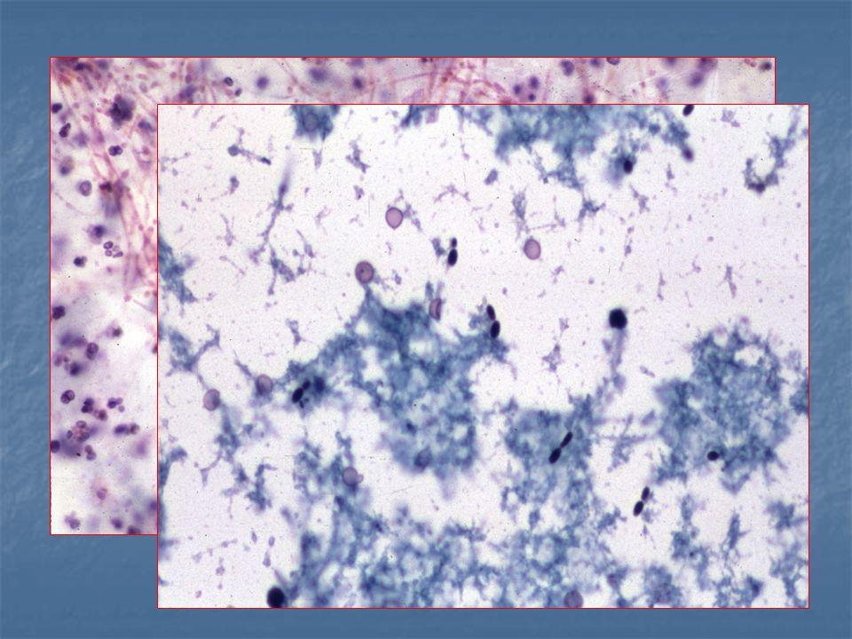 urothelialis papilloma szövettan