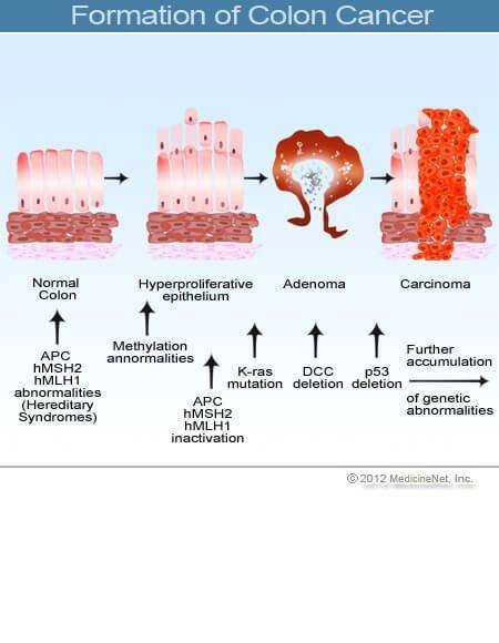 Peritoneális karcinóma - Myoma
