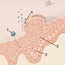 a hüvely vizsgálata genitális szemölcsökkel multiplex intraductalis papillomatosis