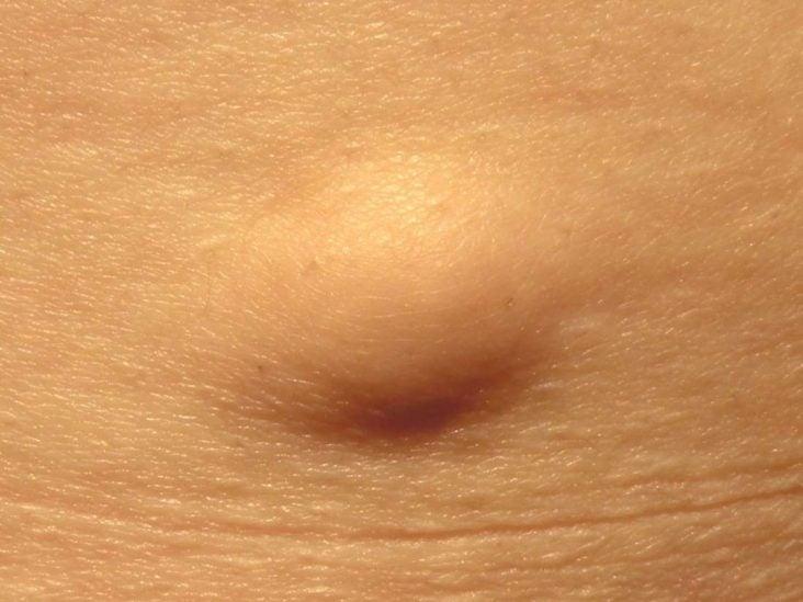 miért fáj a papilloma papilloma vírus csecsemőknél