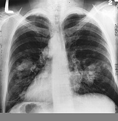 tüdőrák diagnózis