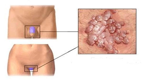 szemölcsök papilloma condyloma keratom endometrium rák nz
