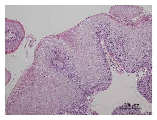a cervicalis condyloma oka