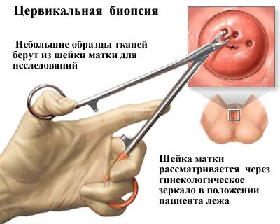 halálos papilloma vírus genitális hpv a kezeken