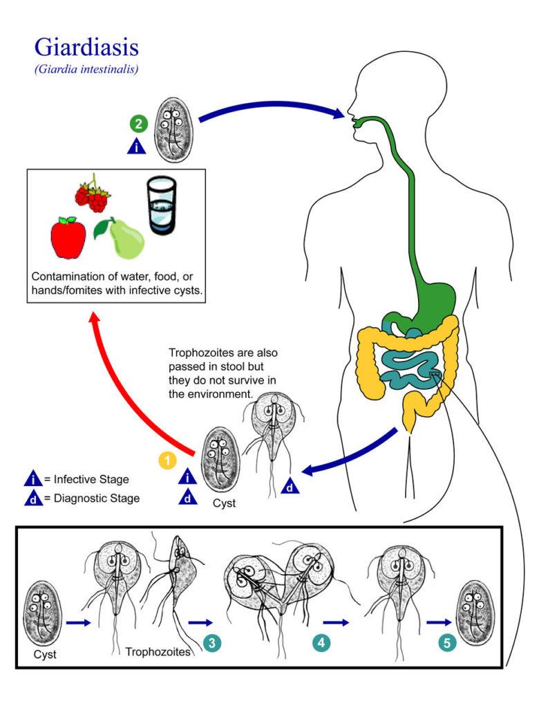 étrendi giardiasis menü parazita kezelés felülvizsgálatok brt