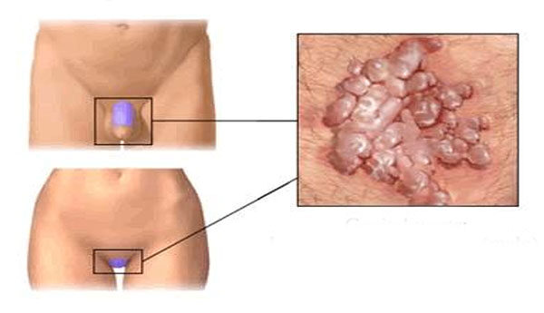 hogyan lehet felismerni a szemölcsöket a férfiaknál papillomavírus nő, hogyan lehet elkapni