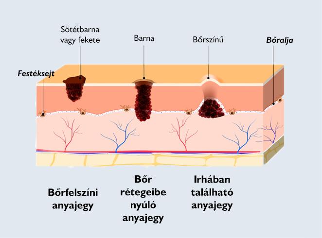felületes hólyag papilloma enterobius vermicularis földrajzi eloszlás